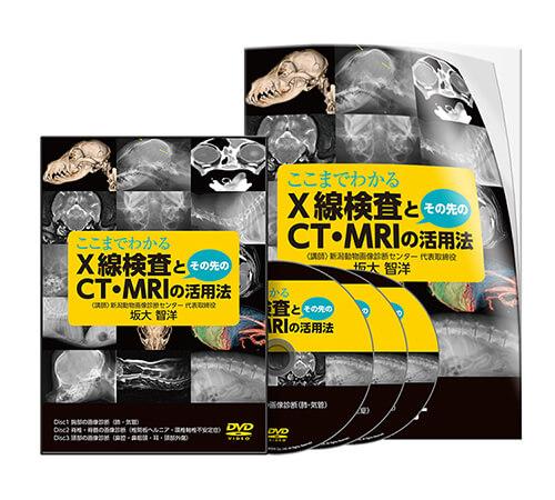 ここまでわかるX線検査とその先のCT・MRIの活用法│医療情報研究所DVD